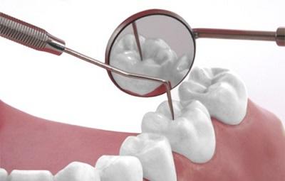 Diş Dolgusu Nasıl Yapılır