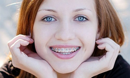 ortodonti-fiyatlari